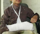 Chinot:Teacher fractures pupil's arm